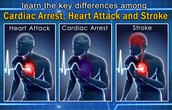 The difference between different heart diseases