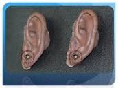 auricular prosthetics
