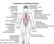 FIGHT BACK AGAINST CHILDHOOD OBESITY