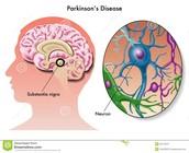 Parkinson? Wat is dat?