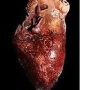 Afecto al corazón