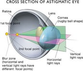 Cross section of astigmatic eye.