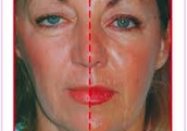 Alcohol effects on the skin