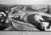 Keloid Scars from radiation