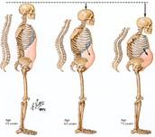 Prevent Weak Bones