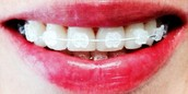 Ortodoncia transparente (zafiro)
