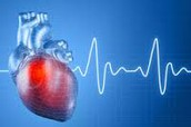 What is CVD and how does it affect us as college students?