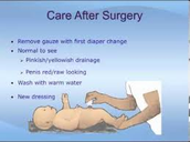 How To Care For Baby After Circumcision Surgery
