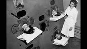 Polio patients