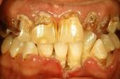 Rotting teeth
