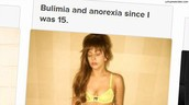 Lady Gaga suffers from bulimia