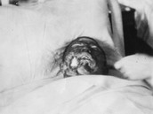Burned Victim
