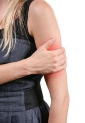Es raro que el brazo te duela.
