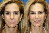 Perspective on Facial Rejuvenation