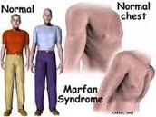 Symptoms:
