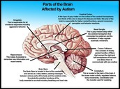 Affects on the brain
