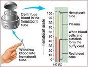 Hematocrit Test