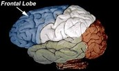 Shows the part of the brain where the syndrome can be detected