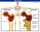 What Is Bone Cancer?