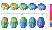 the progression of the brain...