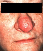 Subtype 3: Enlargement of the Nose