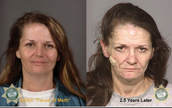 This women had been on meth for 2.5 years