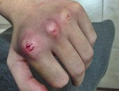 Cut Knuckles