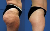 Choosing the Most Effective Cellulite Reduction Treatment