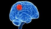 Brain Cancer and Symptoms