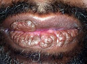 Leukopenia Symptom