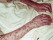 Red spots on a persons forearms.