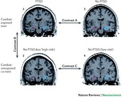Brain Activity of PTSD