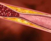 Why is cholesterol monitored?