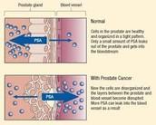 Prostate-specific antigen (PSA) Test