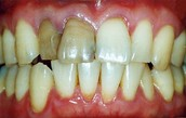 Bad breath and discoloration of teeth