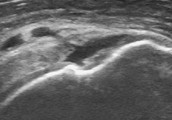 Ultrasound to diagnose the cause of your pain