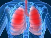 How many And What Kind of People get Cystic Fibrosis