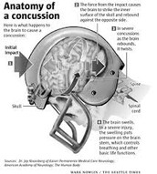 Definition of Concussions