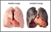 Smoking Leads To Many Diseases And Cancers