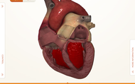 Heart Damge