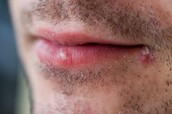Male with cold sores