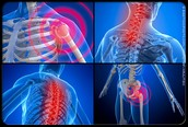 What are signs and symptoms of Fibromyalgia?