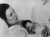 Avoid Smallpox!