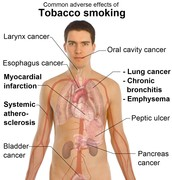 Effects of Tabacco