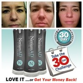 The 30 day results of a esthetician of 10 years using only the day cream!