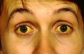 The effects of Jaundice on the eyes