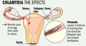 Symptons And Effections
