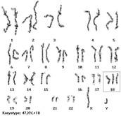 Karyotype of Haemophilia