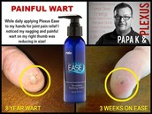 Why We Plexus: Ease Cream Testimonial from Keith Hall
