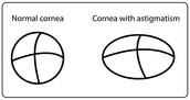 Normal Cornea Versuses Cornea with Astigmatism